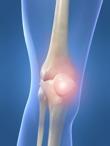 Knee in Pain